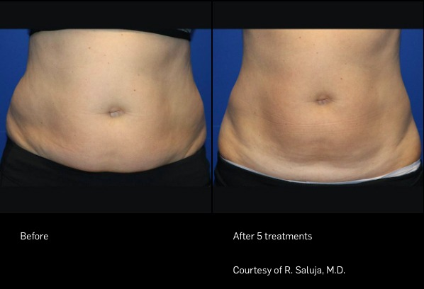 FlexSure Before and After - Stomach