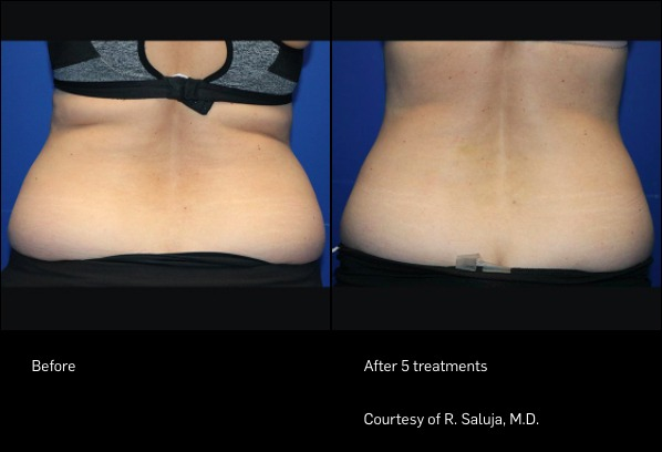 FlexSure Before and After - Back