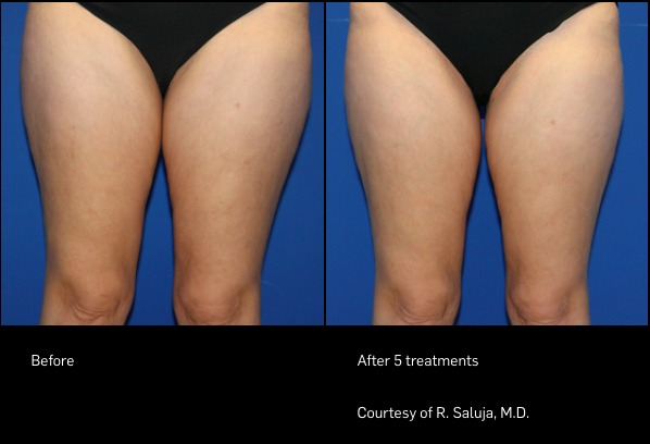 FlexSure Before and After - Legs