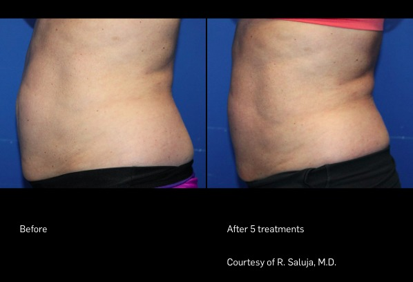 FlexSure Before and After - Side of Stomach