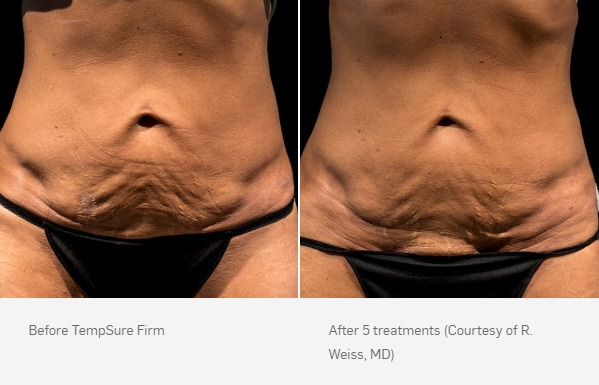 TempSure Firm Before & After Stomach