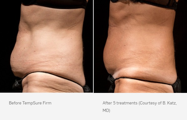 TempSure Firm Before & After Stomach Side